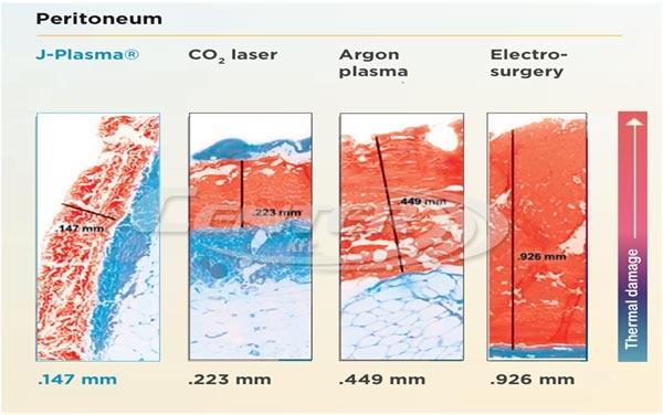 bovie-medical-j-plasma-thermal-effect